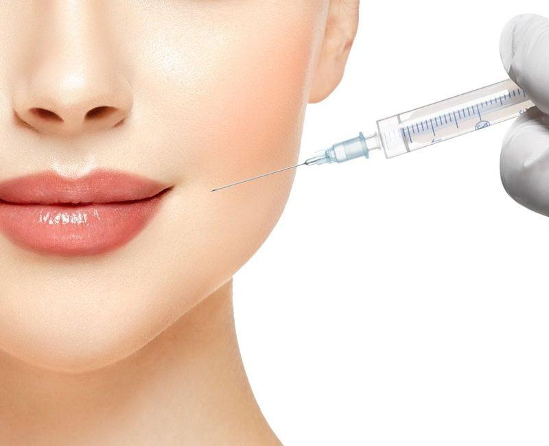 korekcja żuchwy botoxem