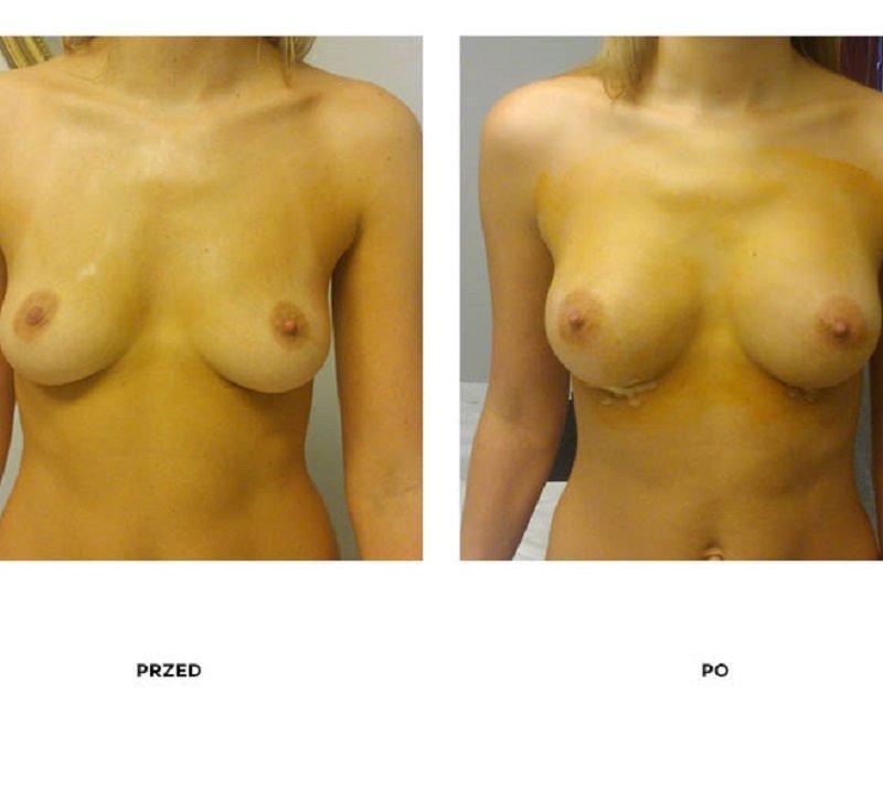 Modelowanie ciała zabieg