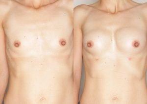operacja plastyczna piersi Poznan