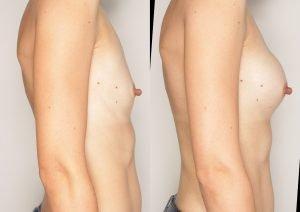 powiekszanie biustu przed i po
