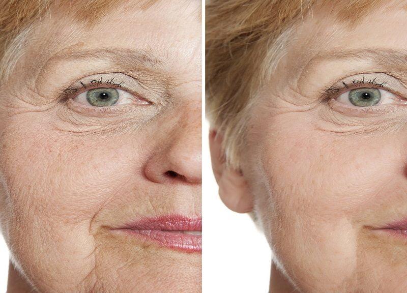 lifting twarzy efekty