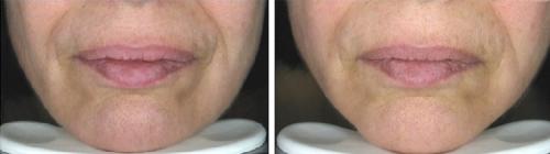 odmladzanie twarzy - efekty